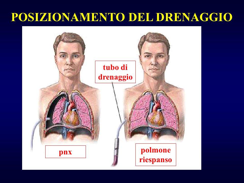 tubo di drenaggio pnx polmone riespanso