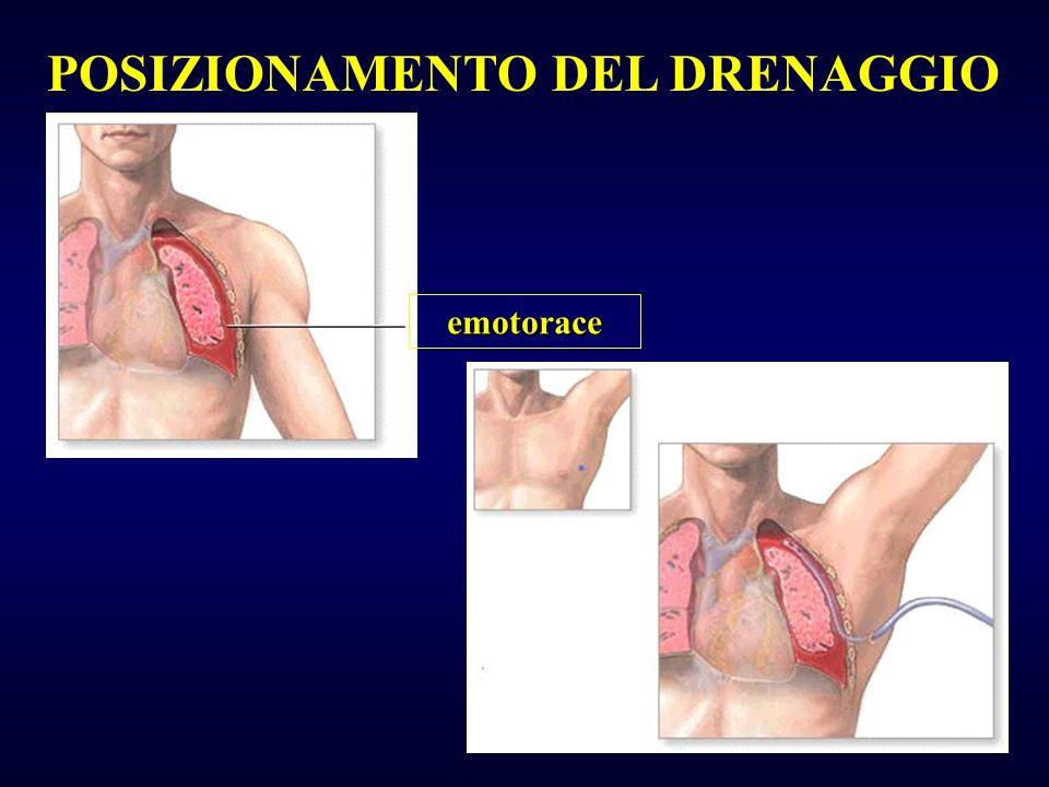 POSIZIONAMENTO DEL DRENAGGIO emotorace