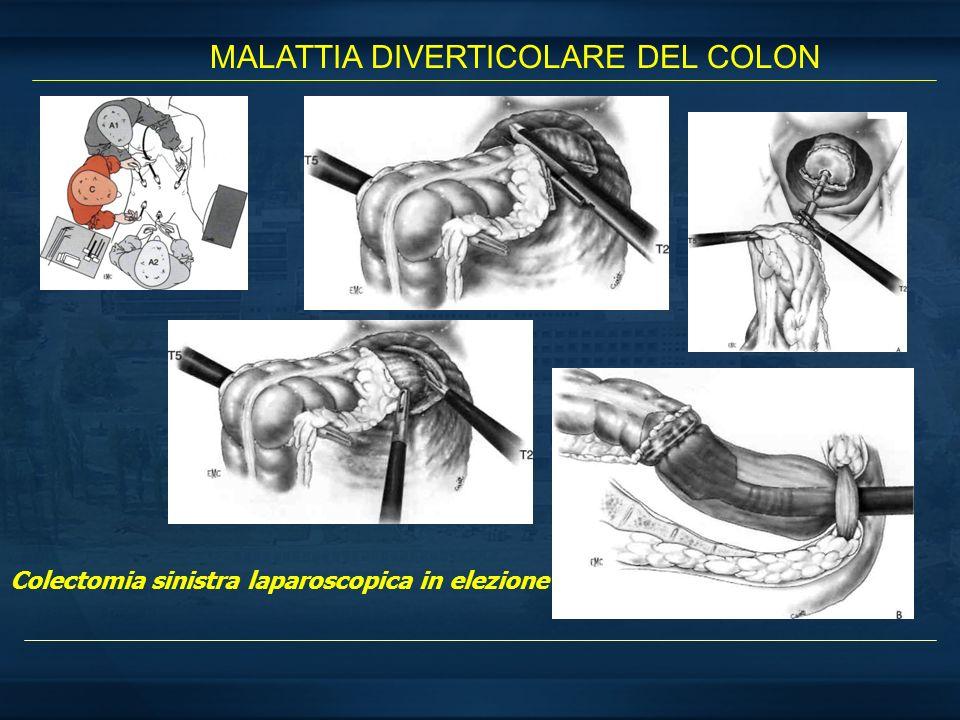 MALATTIA DIVERTICOLARE DEL COLON Colectomia sinistra laparoscopica in elezione