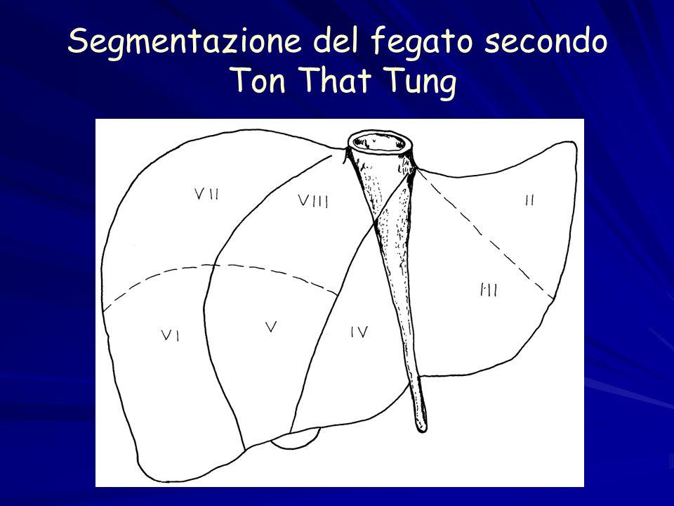 Epatectomia sinistra: visione del lobo sinistro (II e III segmento)