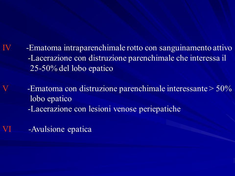 IV -Ematoma intraparenchimale rotto con sanguinamento attivo -Lacerazione con distruzione parenchimale che interessa il 25-50% del lobo epatico V -Ema
