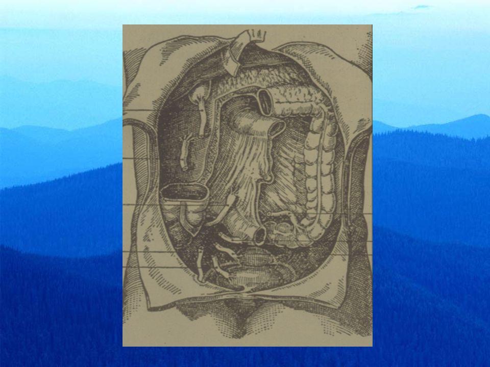 flogosi appendicolare Diagnosi differenziale nel bambino Polmonite basilare destraPolmonite basilare destra Linfoadenite mesentericaLinfoadenite mesenterica Gastroenterite acutaGastroenterite acuta PielitePielite Diverticolo di MeckelDiverticolo di Meckel IntussuscezioneIntussuscezione Porpora di Schonlein-HenochPorpora di Schonlein-Henoch Peritonite primariaPeritonite primaria