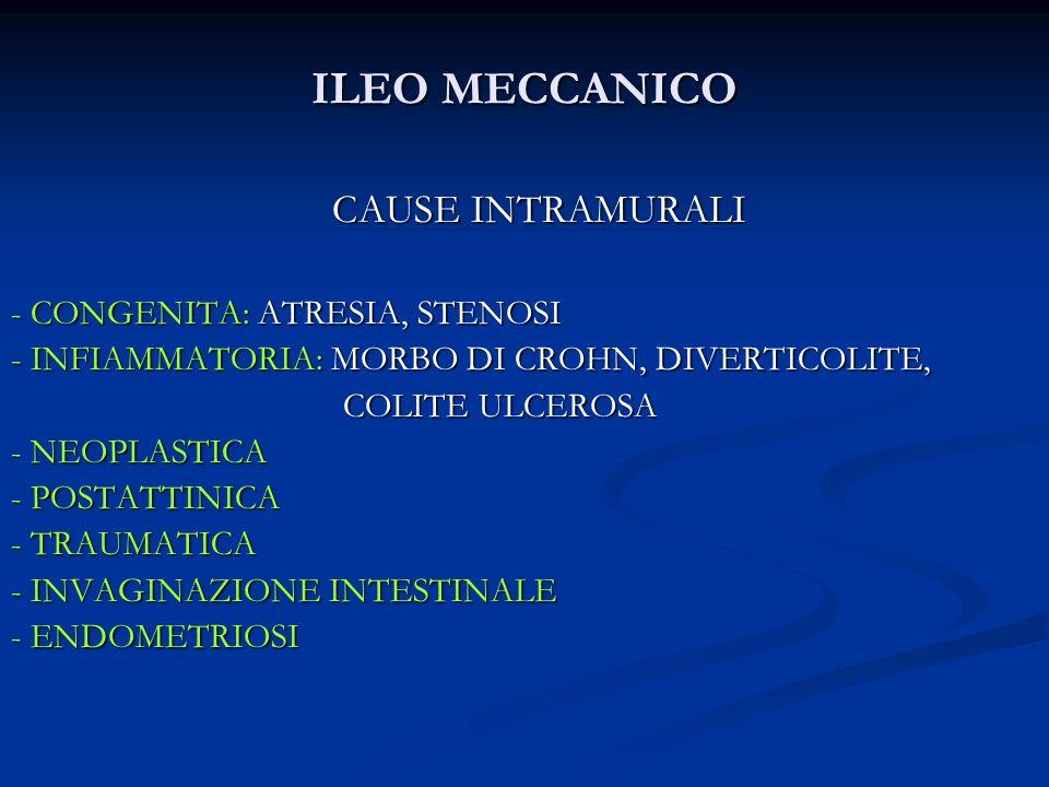 ILEO MECCANICO CAUSE INTRAMURALI - CONGENITA: ATRESIA, STENOSI - INFIAMMATORIA: MORBO DI CROHN, DIVERTICOLITE, COLITE ULCEROSA COLITE ULCEROSA - NEOPL