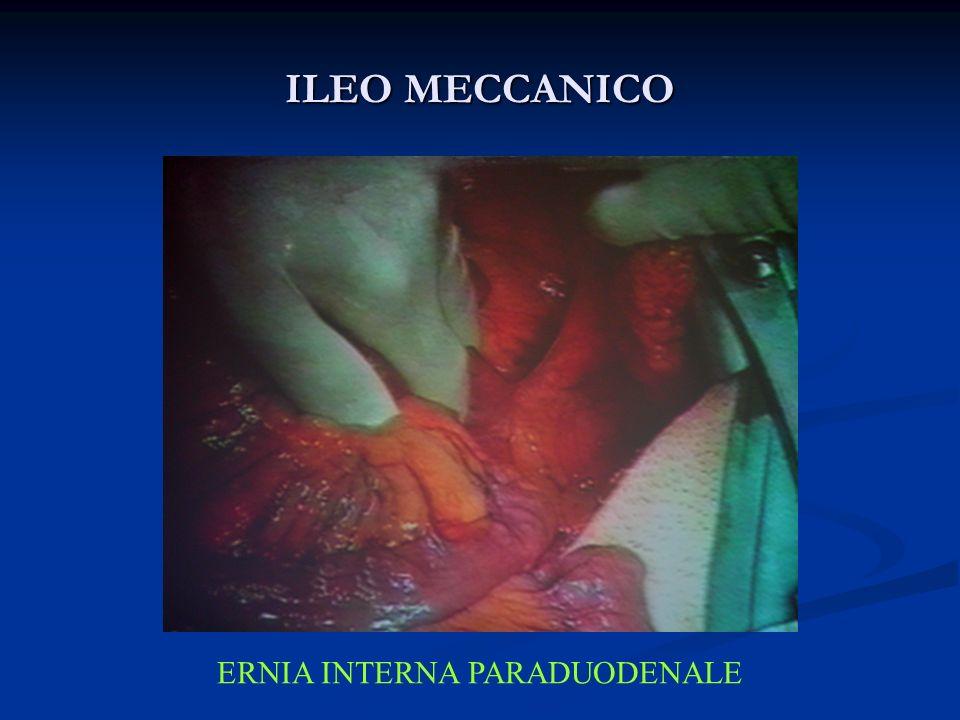 ILEO MECCANICO ERNIA INTERNA PARADUODENALE