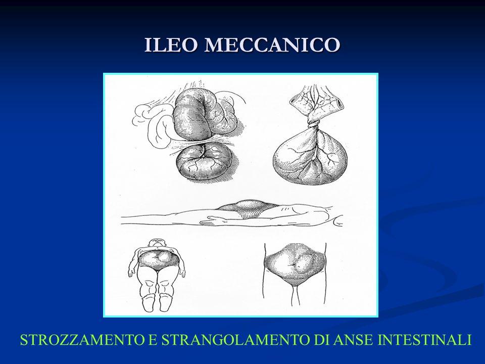 ILEO MECCANICO STROZZAMENTO E STRANGOLAMENTO DI ANSE INTESTINALI