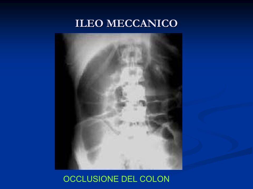 ILEO MECCANICO OCCLUSIONE DEL COLON