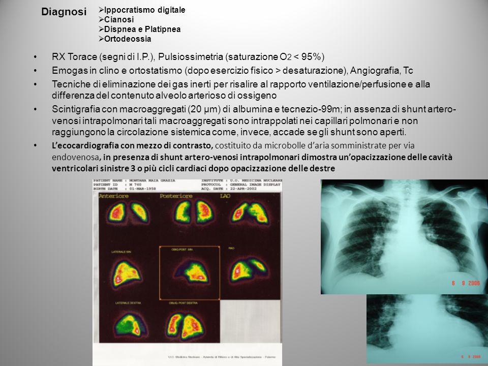 RX Torace (segni di I.P.), Pulsiossimetria (saturazione O 2 < 95%) Emogas in clino e ortostatismo (dopo esercizio fisico > desaturazione), Angiografia