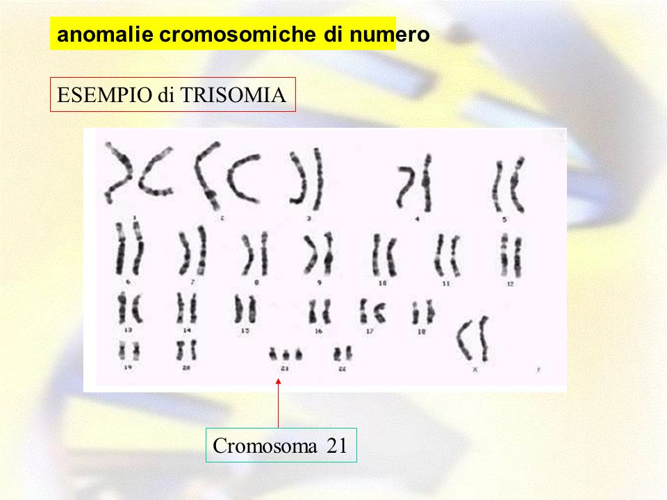ESEMPIO di TRISOMIA Cromosoma 21 anomalie cromosomiche di numero
