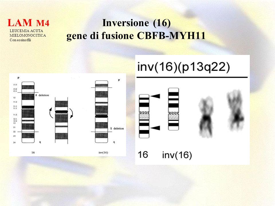 Inversione (16) gene di fusione CBFB-MYH11 LAM M4 LEUCEMIA ACUTA MIELOMONOCITICA Con eosinofili