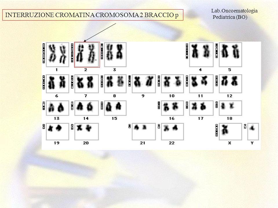 Lab.Oncoematologia Pediatrica (BO) INTERRUZIONE CROMATINA CROMOSOMA 2 BRACCIO p