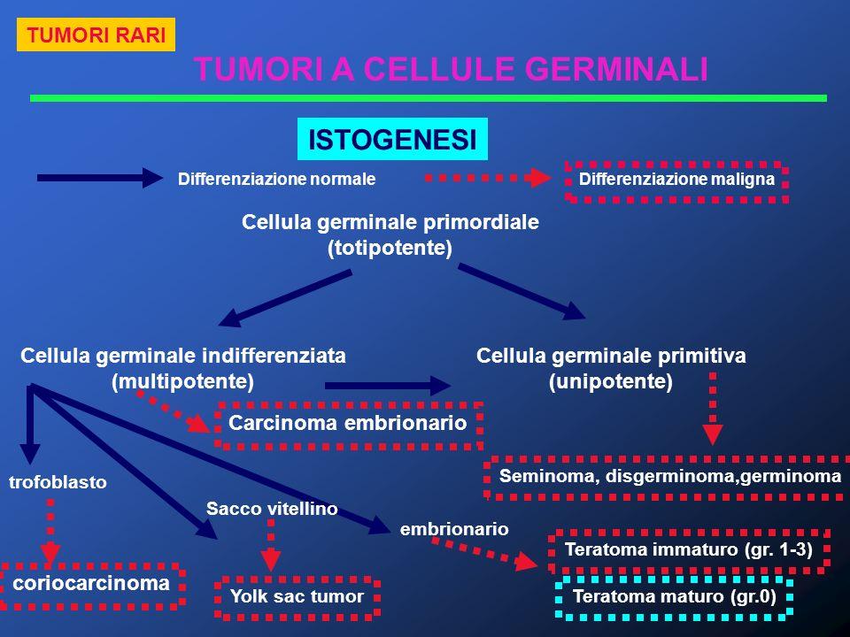 Carcinoma embrionario TUMORI A CELLULE GERMINALI Differenziazione normale Differenziazione maligna Cellula germinale primordiale (totipotente) Cellula