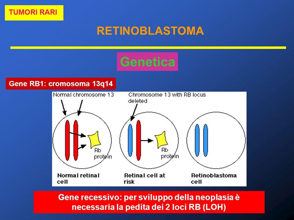 RETINOBLASTOMA TUMORI RARI Genetica Gene RB1: cromosoma 13q14 Gene recessivo: per sviluppo della neoplasia è necessaria la pedita dei 2 loci RB (LOH)