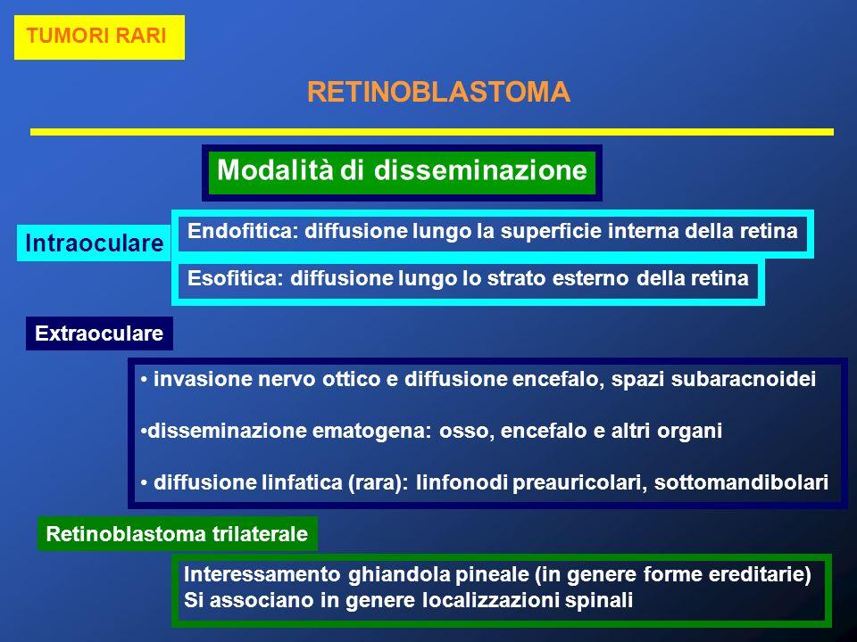 RETINOBLASTOMA TUMORI RARI Modalità di disseminazione Intraoculare Endofitica: diffusione lungo la superficie interna della retina Esofitica: diffusio