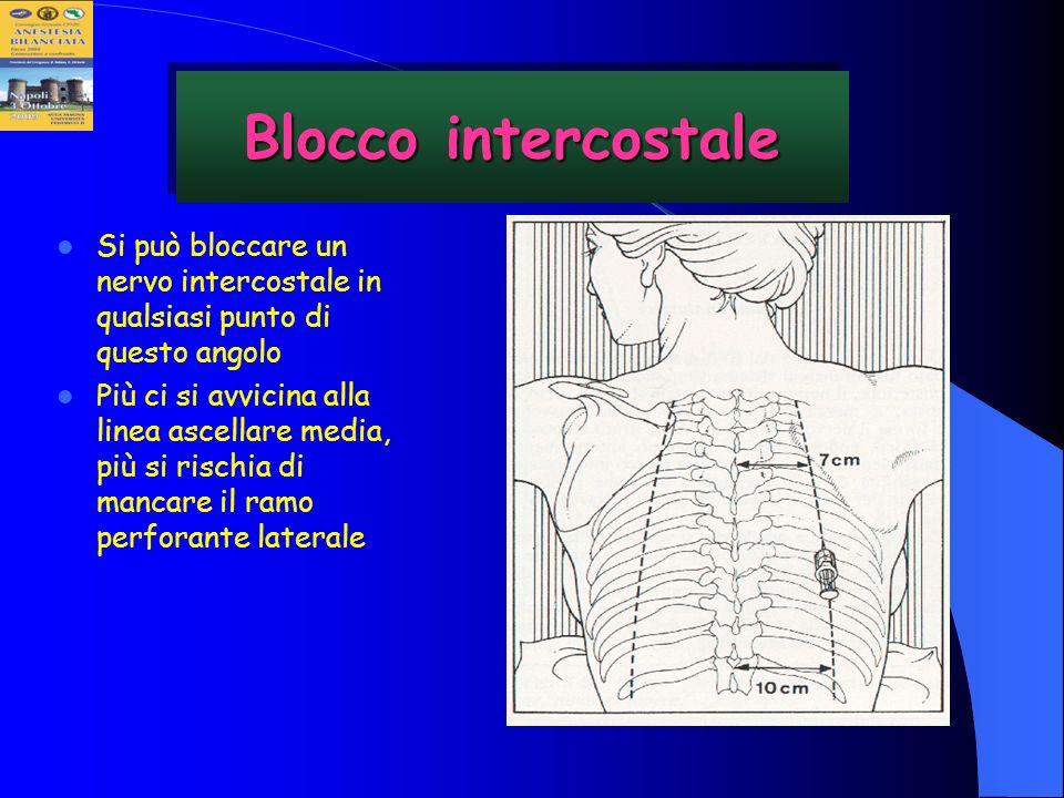 Blocco intercostale Si può bloccare un nervo intercostale in qualsiasi punto di questo angolo Più ci si avvicina alla linea ascellare media, più si ri