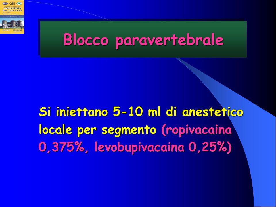 Si iniettano 5-10 ml di anestetico locale per segmento (ropivacaina 0,375%, levobupivacaina 0,25%) Blocco paravertebrale