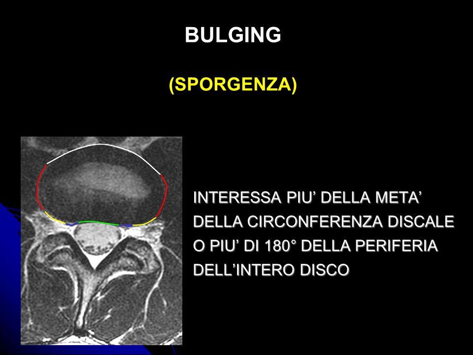 BULGING (SPORGENZA) INTERESSA PIU DELLA META DELLA CIRCONFERENZA DISCALE O PIU DI 180° DELLA PERIFERIA DELLINTERO DISCO