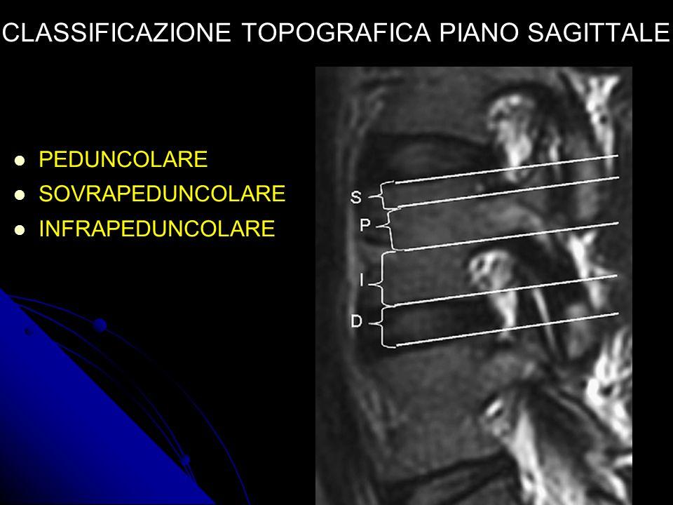 CLASSIFICAZIONE TOPOGRAFICA PIANO SAGITTALE PEDUNCOLARE SOVRAPEDUNCOLARE INFRAPEDUNCOLARE