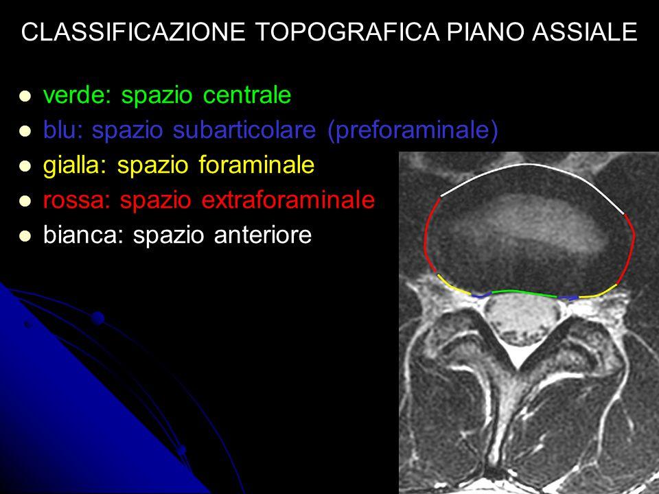 verde: spazio centrale blu: spazio subarticolare (preforaminale) gialla: spazio foraminale rossa: spazio extraforaminale bianca: spazio anteriore CLAS