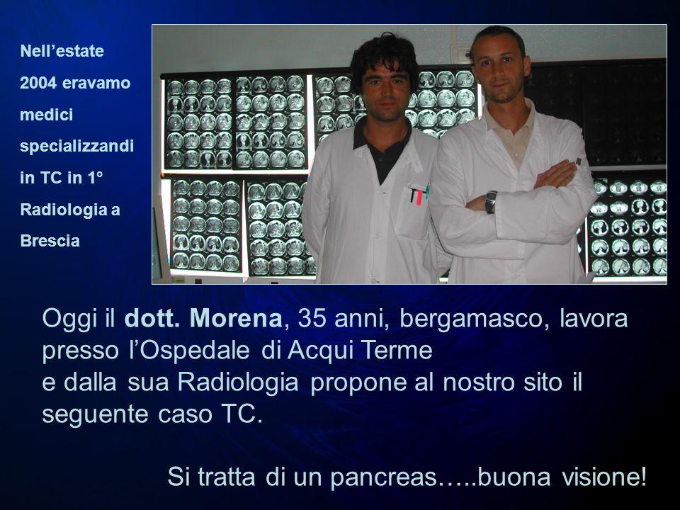 Oggi il dott. Morena, 35 anni, bergamasco, lavora presso lOspedale di Acqui Terme e dalla sua Radiologia propone al nostro sito il seguente caso TC. S