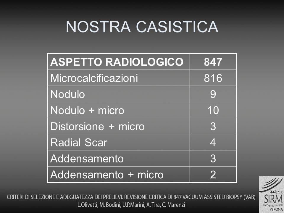 NOSTRA CASISTICA ASPETTO RADIOLOGICO847 Microcalcificazioni816 Nodulo9 Nodulo + micro10 Distorsione + micro3 Radial Scar4 Addensamento3 Addensamento + micro2