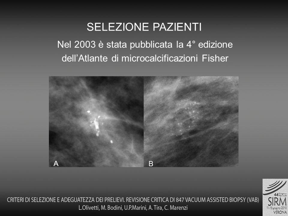 Nel 2003 è stata pubblicata la 4° edizione dellAtlante di microcalcificazioni Fisher SELEZIONE PAZIENTI A B
