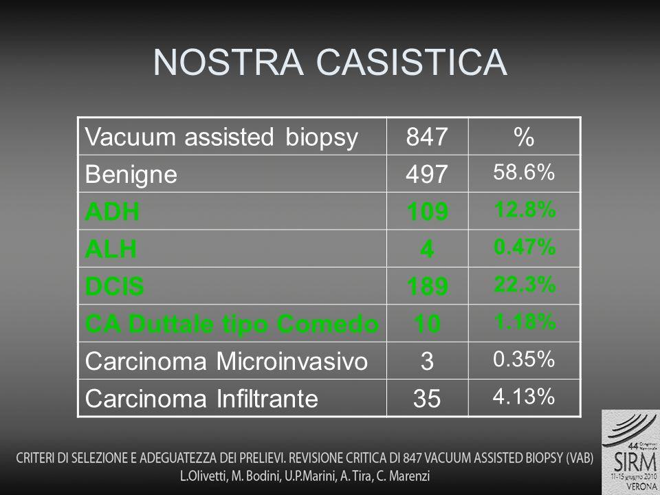 NOSTRA CASISTICA Vacuum assisted biopsy847% Benigne497 58.6% ADH109 12.8% ALH4 0.47% DCIS189 22.3% CA Duttale tipo Comedo10 1.18% Carcinoma Microinvasivo3 0.35% Carcinoma Infiltrante35 4.13%