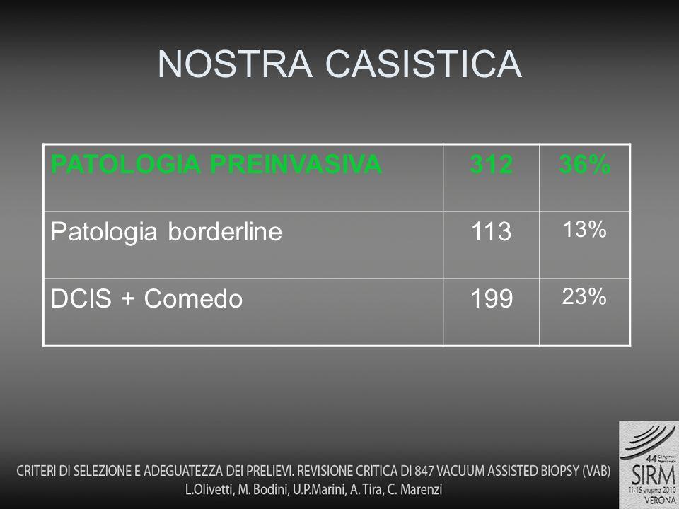 NOSTRA CASISTICA PATOLOGIA PREINVASIVA31236% Patologia borderline113 13% DCIS + Comedo199 23%