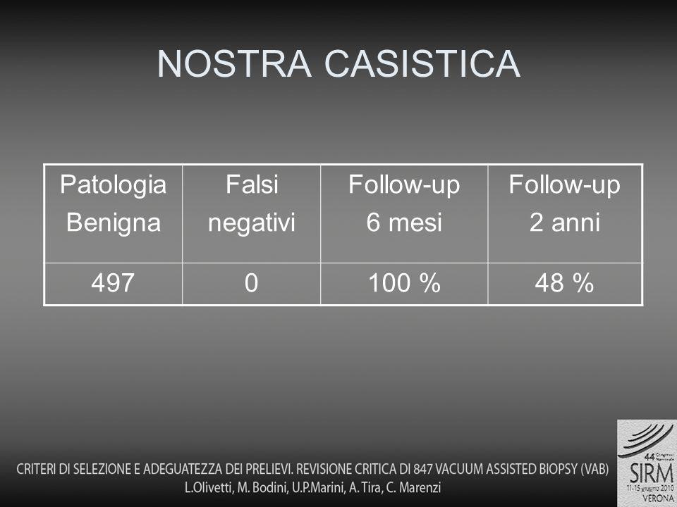 NOSTRA CASISTICA Patologia Benigna Falsi negativi Follow-up 6 mesi Follow-up 2 anni 4970100 %48 %