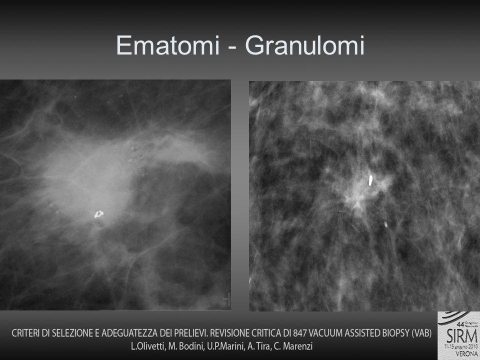 Ematomi - Granulomi