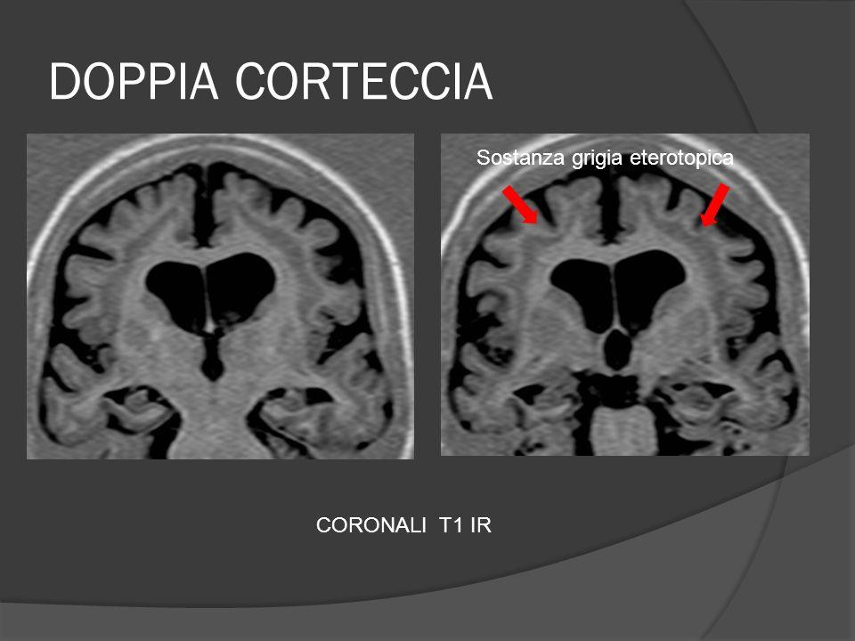 DOPPIA CORTECCIA CORONALI T1 IR Sostanza grigia eterotopica