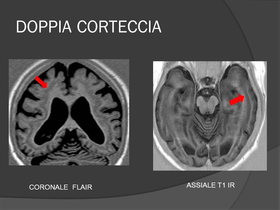 DOPPIA CORTECCIA CORONALE FLAIR ASSIALE T1 IR