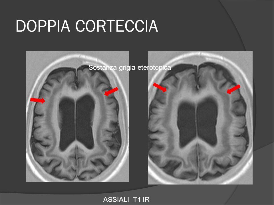 DOPPIA CORTECCIA ASSIALI T1 IR Sostanza grigia eterotopica