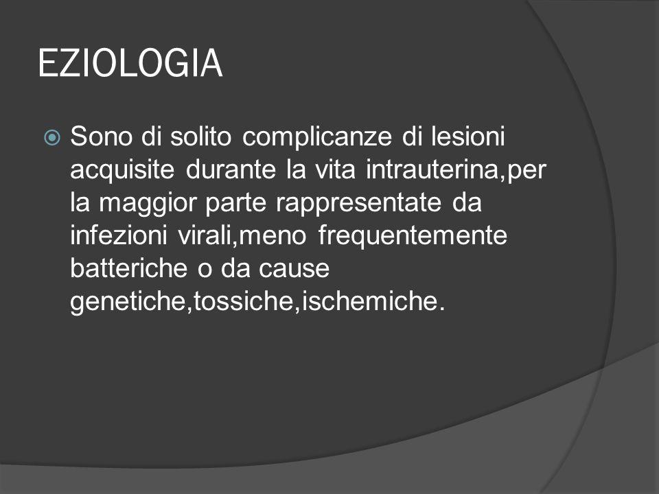 EZIOLOGIA Sono di solito complicanze di lesioni acquisite durante la vita intrauterina,per la maggior parte rappresentate da infezioni virali,meno fre