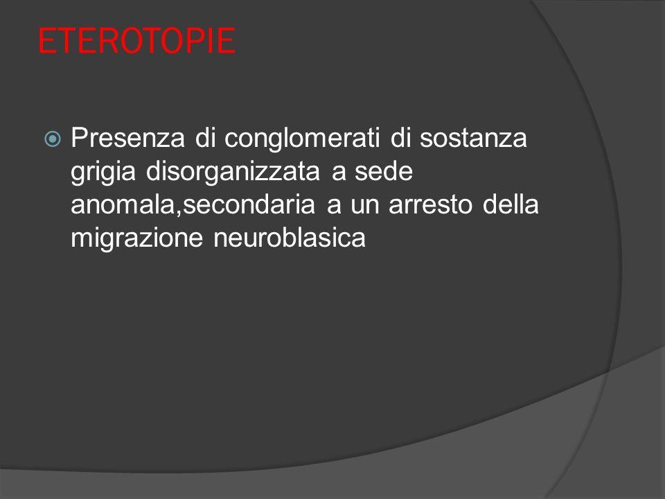 ETEROTOPIE Presenza di conglomerati di sostanza grigia disorganizzata a sede anomala,secondaria a un arresto della migrazione neuroblasica