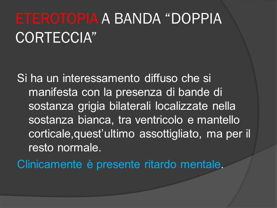 ETEROTOPIA A BANDA DOPPIA CORTECCIA Si ha un interessamento diffuso che si manifesta con la presenza di bande di sostanza grigia bilaterali localizzat
