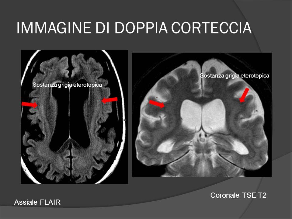 IMMAGINE DI DOPPIA CORTECCIA Assiale FLAIR Coronale TSE T2 Sostanza grigia eterotopica