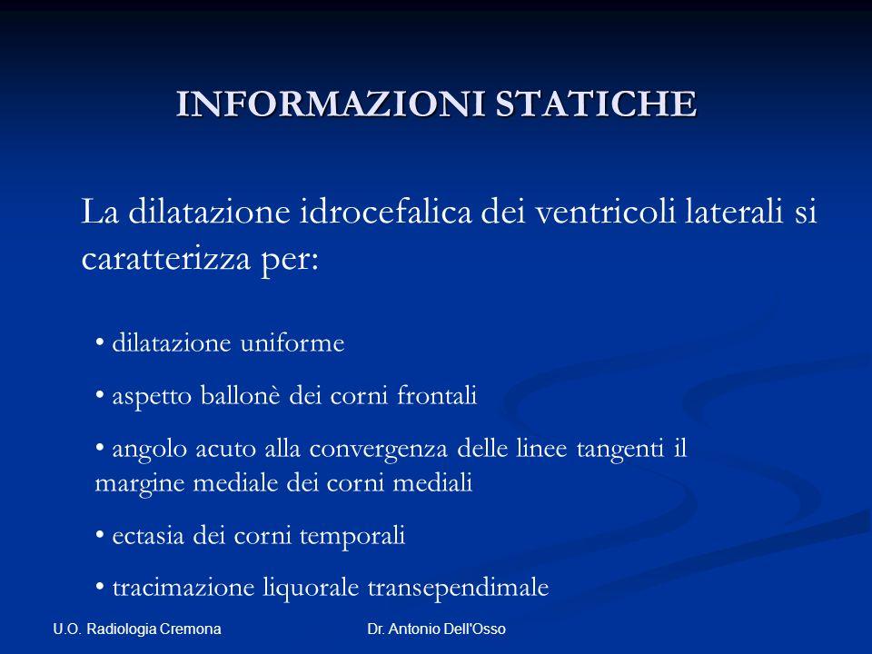 U.O. Radiologia Cremona Dr. Antonio Dell'Osso INFORMAZIONI STATICHE La dilatazione idrocefalica dei ventricoli laterali si caratterizza per: dilatazio
