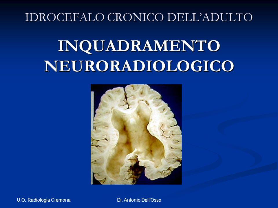 U.O. Radiologia Cremona Dr. Antonio Dell'Osso IDROCEFALO CRONICO DELLADULTO INQUADRAMENTO NEURORADIOLOGICO