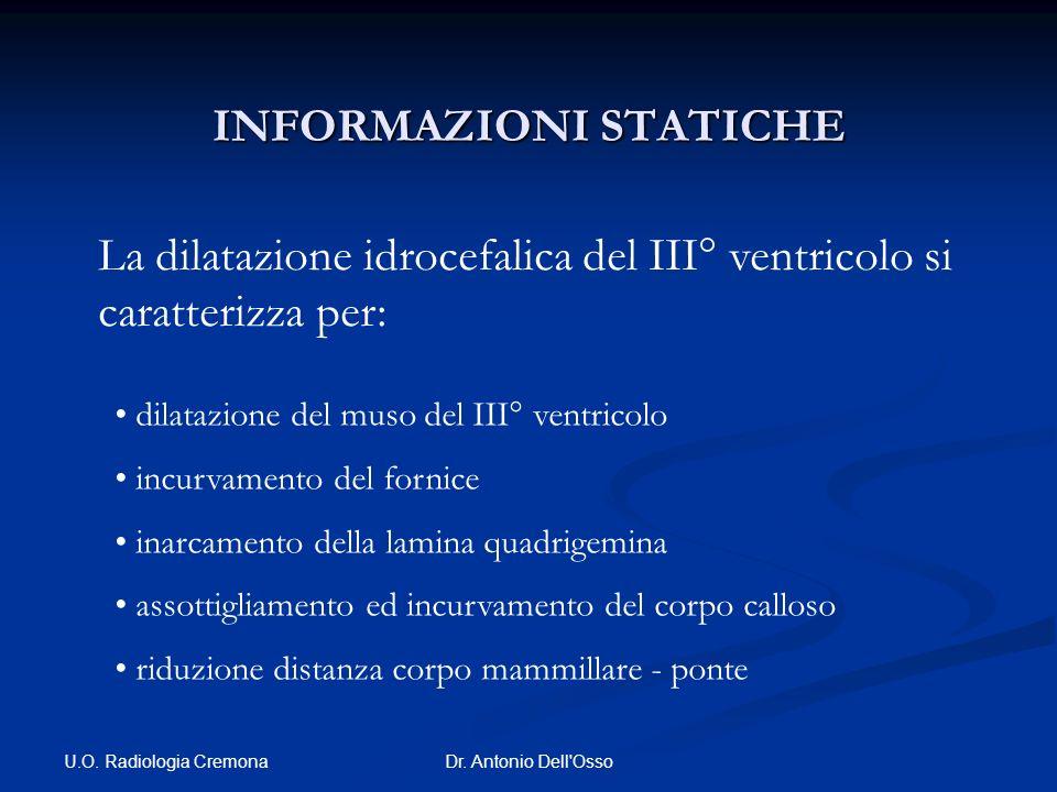 U.O. Radiologia Cremona Dr. Antonio Dell'Osso INFORMAZIONI STATICHE La dilatazione idrocefalica del III° ventricolo si caratterizza per: dilatazione d