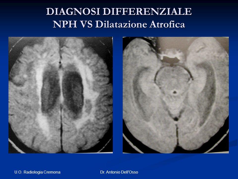 U.O. Radiologia Cremona Dr. Antonio Dell'Osso DIAGNOSI DIFFERENZIALE NPH VS Dilatazione Atrofica