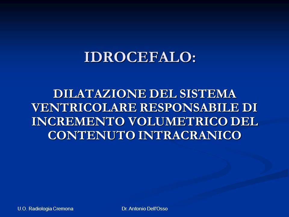 U.O. Radiologia Cremona Dr. Antonio Dell'Osso IDROCEFALO: DILATAZIONE DEL SISTEMA VENTRICOLARE RESPONSABILE DI INCREMENTO VOLUMETRICO DEL CONTENUTO IN