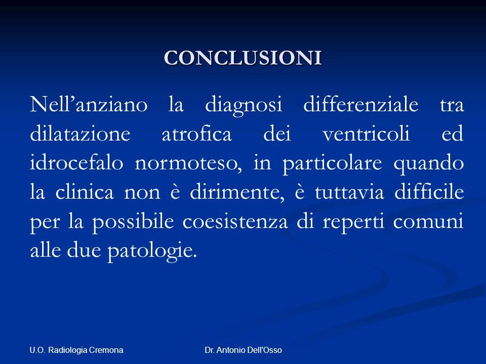 U.O. Radiologia Cremona Dr. Antonio Dell'Osso CONCLUSIONI Nellanziano la diagnosi differenziale tra dilatazione atrofica dei ventricoli ed idrocefalo