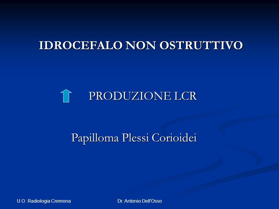 U.O. Radiologia Cremona Dr. Antonio Dell'Osso IDROCEFALO NON OSTRUTTIVO IDROCEFALO NON OSTRUTTIVO PRODUZIONE LCR Papilloma Plessi Corioidei