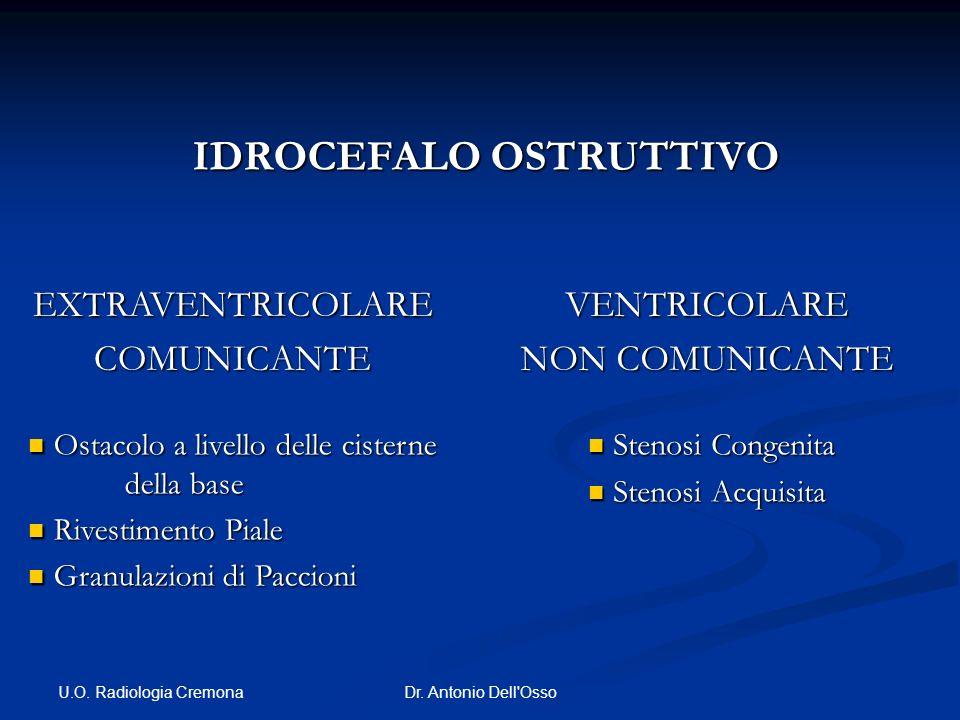U.O. Radiologia Cremona Dr. Antonio Dell'Osso IDROCEFALO OSTRUTTIVO IDROCEFALO OSTRUTTIVO EXTRAVENTRICOLARECOMUNICANTE Ostacolo a livello delle cister