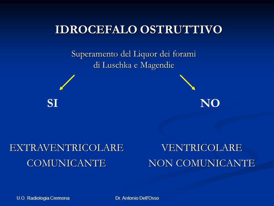 U.O. Radiologia Cremona Dr. Antonio Dell'Osso IDROCEFALO OSTRUTTIVO IDROCEFALO OSTRUTTIVO EXTRAVENTRICOLARECOMUNICANTEVENTRICOLARE NON COMUNICANTE Sup