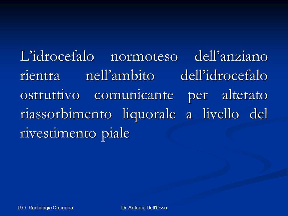U.O. Radiologia Cremona Dr. Antonio Dell'Osso Lidrocefalo normoteso dellanziano rientra nellambito dellidrocefalo ostruttivo comunicante per alterato