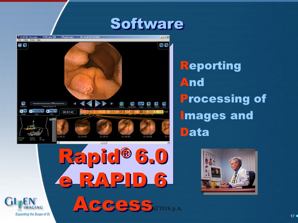 M.G.LORENZATTO S.p.A. 17 Reporting And Processing of Images and Data Rapid ® 6.0 e RAPID 6 Access Software
