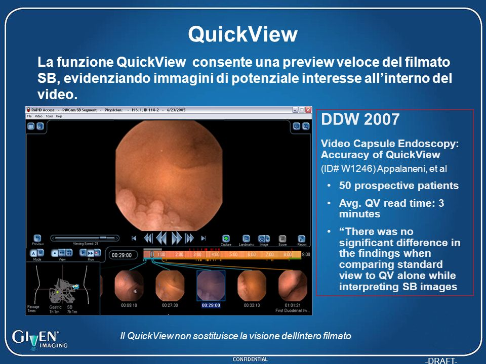 -DRAFT- QuickView DDW 2007 Video Capsule Endoscopy: Accuracy of QuickView (ID# W1246) Appalaneni, et al 50 prospective patients Avg. QV read time: 3 m