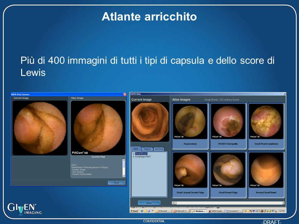-DRAFT- Atlante arricchito Più di 400 immagini di tutti i tipi di capsula e dello score di Lewis