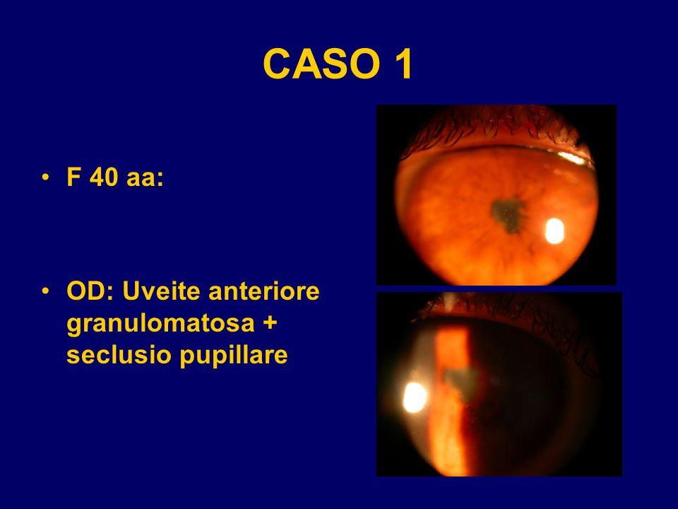 CASO 1 F 40 aa: OD: Uveite anteriore granulomatosa + seclusio pupillare
